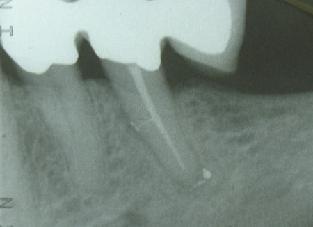 Endodontie - Dr. Schwarzkopf-Streit, Dr. Feuerle, Zahnärzte in Bettringen