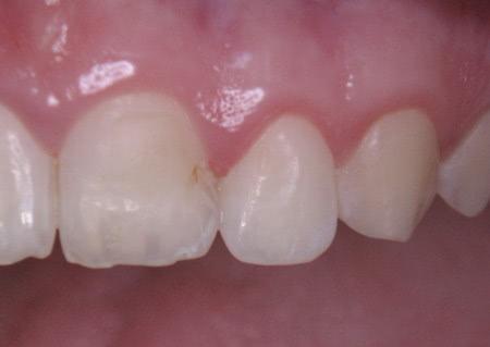 Parodontologie - Dr. Schwarzkopf-Streit, Dr. Feuerle, Zahnärzte in Bettringen