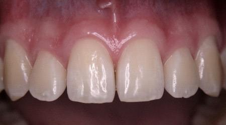 Ästhetische Zahnmedizin - Dr. Schwarzkopf-Streit, Dr. Feuerle, Zahnärzte in Bettringen