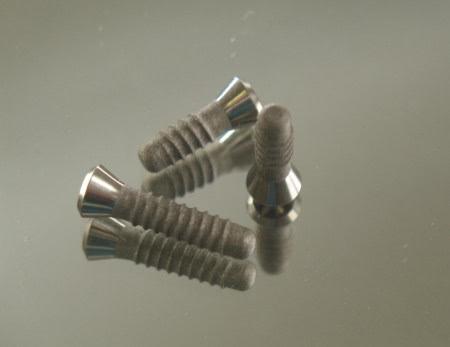 Implantologie - Dr. Schwarzkopf-Streit, Dr. Feuerle, Zahnärzte in Bettringen